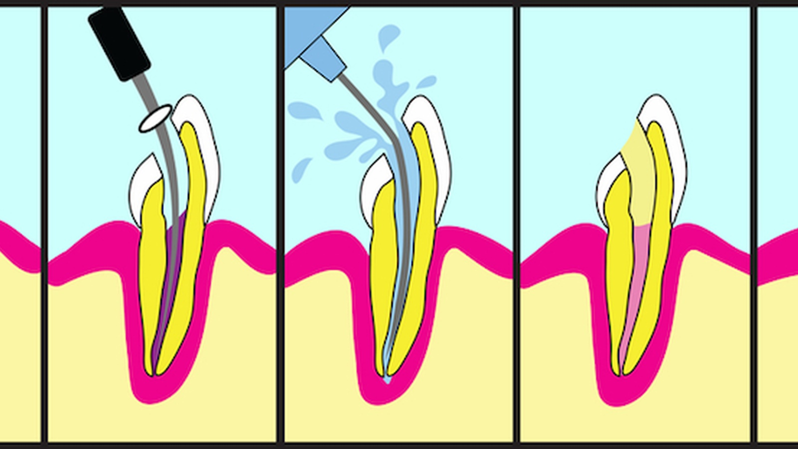 Root Canal Cover Up Exposed