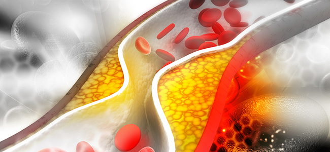 How To Treat Prehypertension Naturally