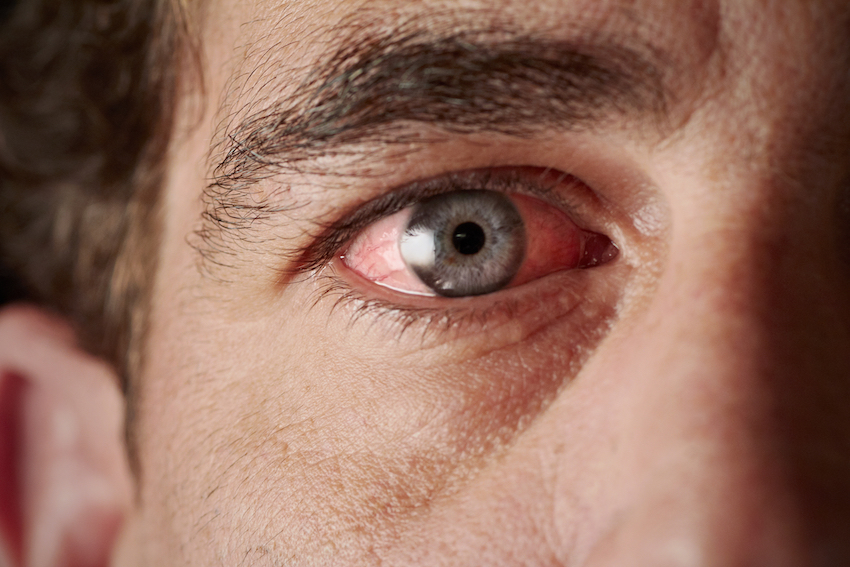Natural Home Remedies For Pink Eye (Conjunctivitis)