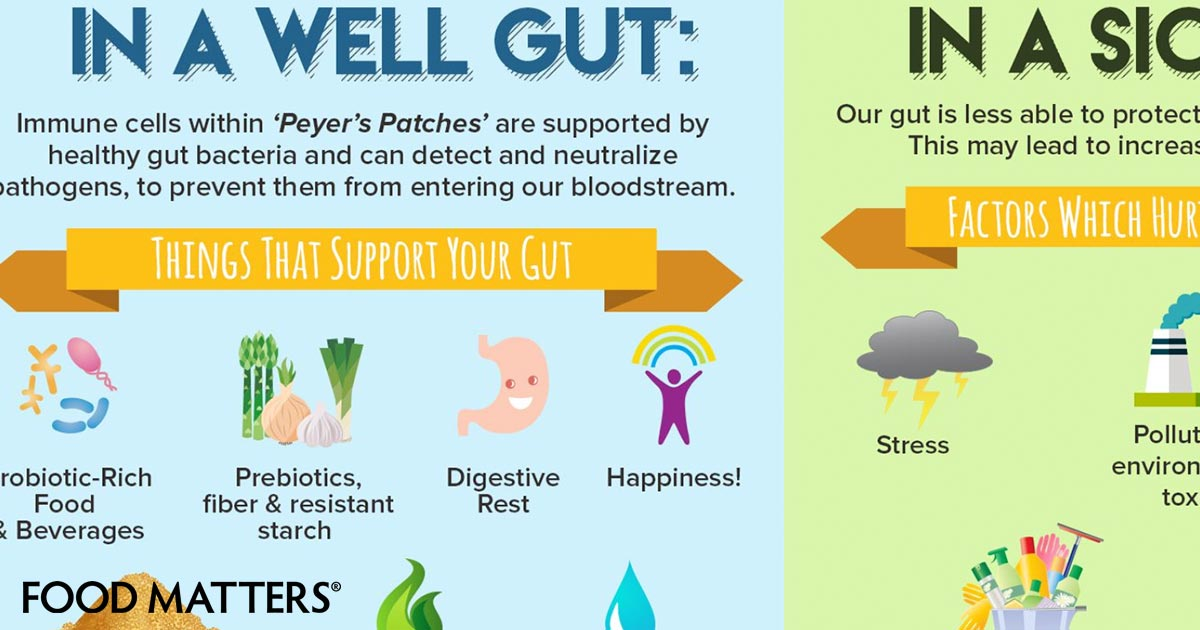 Everything You Need To Know About Gut Health (Infographic ...