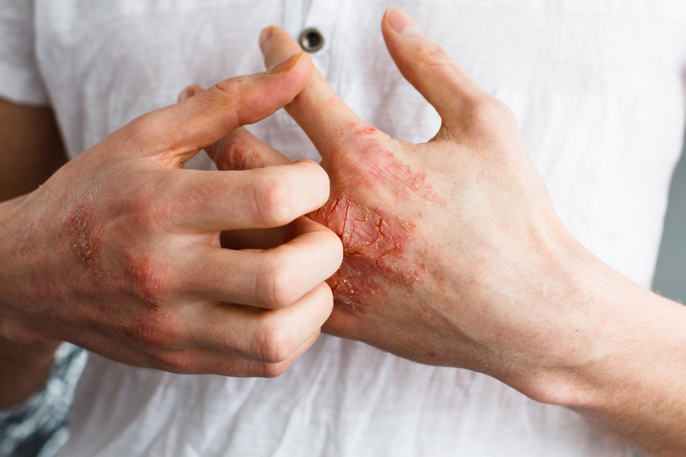 Best Natural Products For Psoriasis