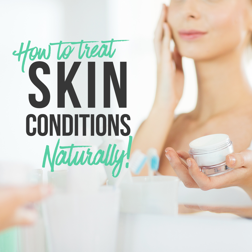 How To Treat Skin Conditions Naturally